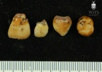 STW 75-79 A. africanus associated upper deciduous dentition